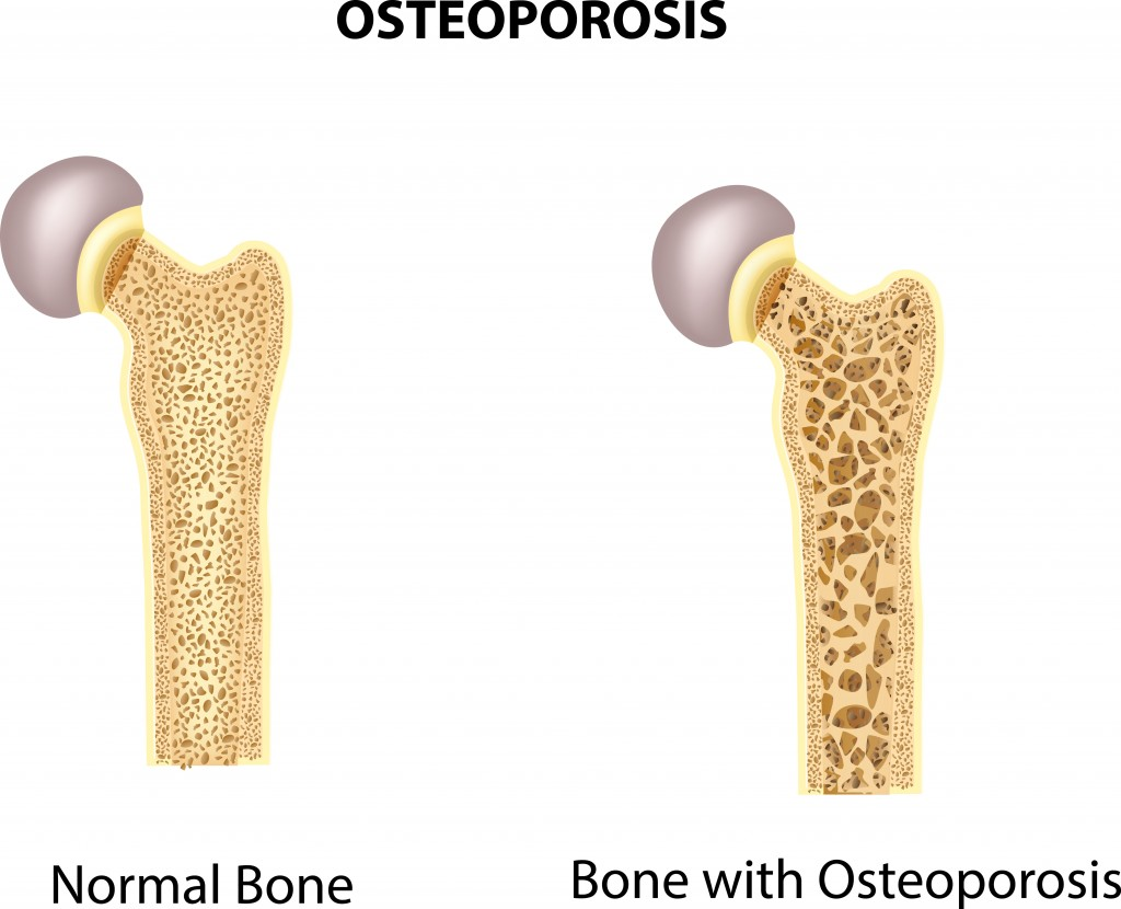 An illustration of two different hip bones. One is healthy, while the other has noticeable bone loss from osteoporosis.