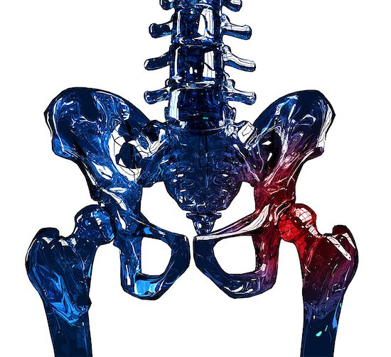 3D image of a glass skeleton with osteoporosis affecting the hip.